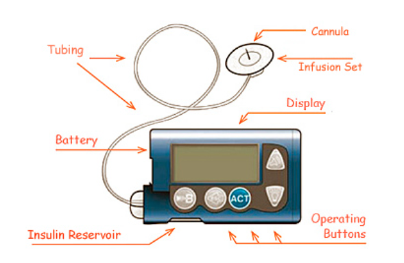 Image result for insulin pump