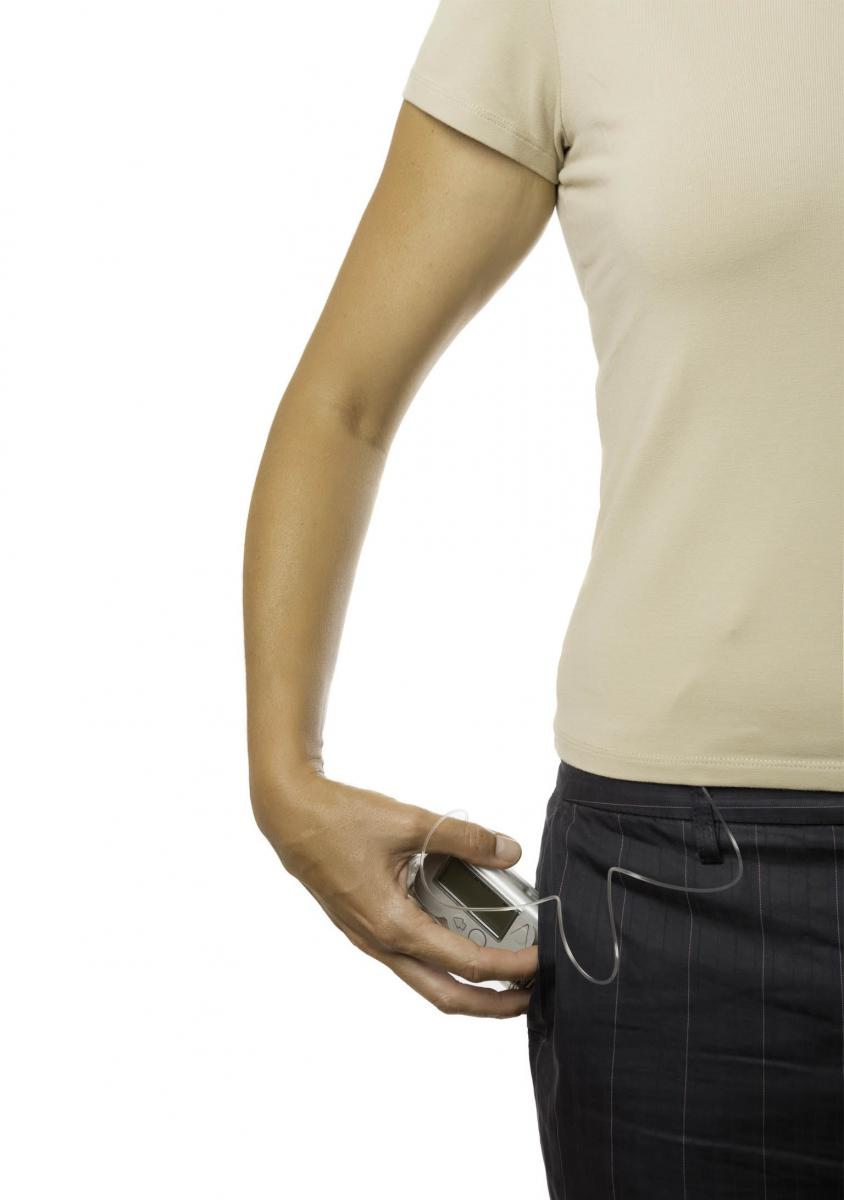 insulin pumps sensors and the future the madison clinic